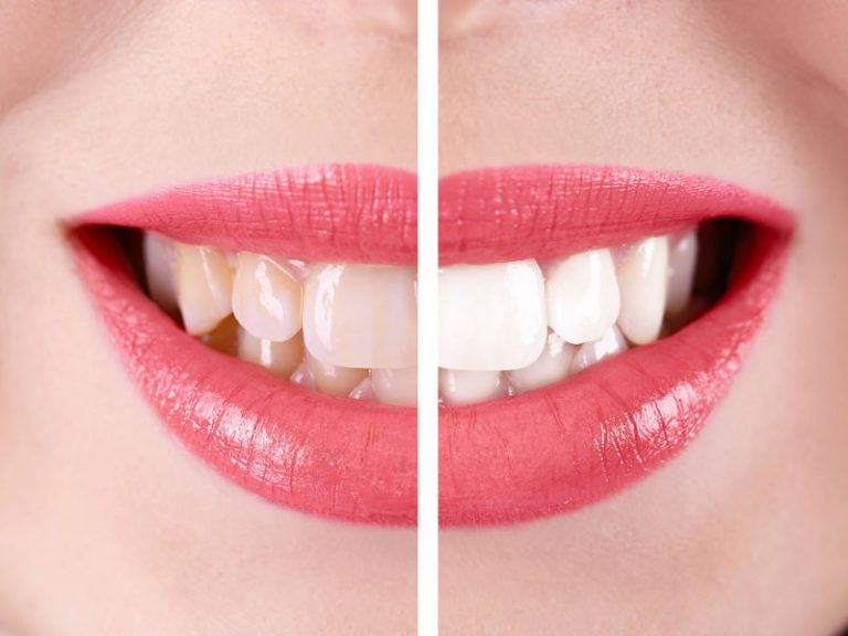 Why you should opt for a teeth whitening procedure